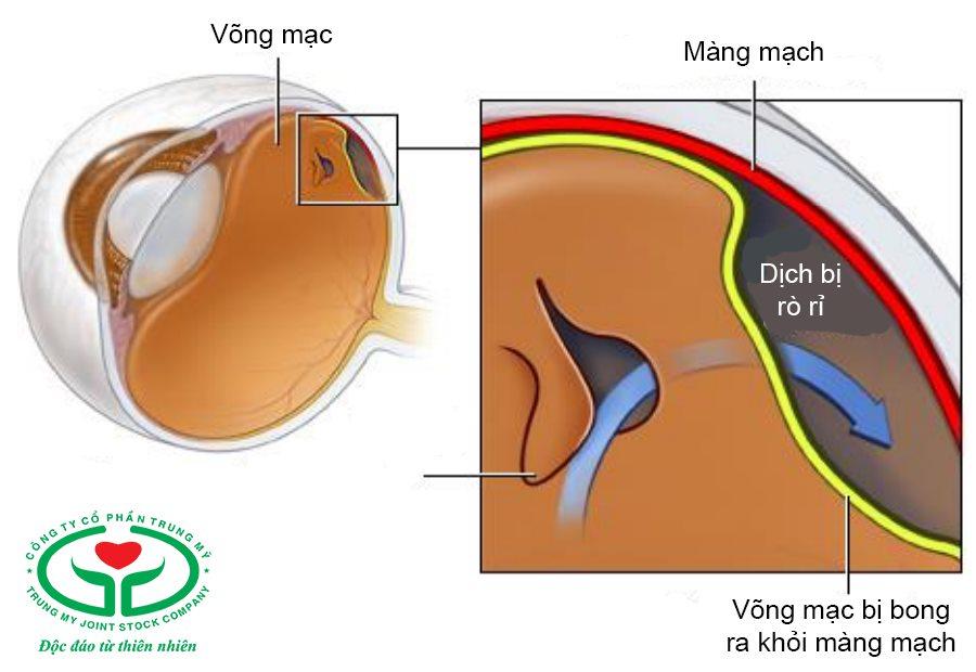 Bong võng mạc là khi võng mạc bị tách ra khỏi lớp màng mạch nuôi dưỡng